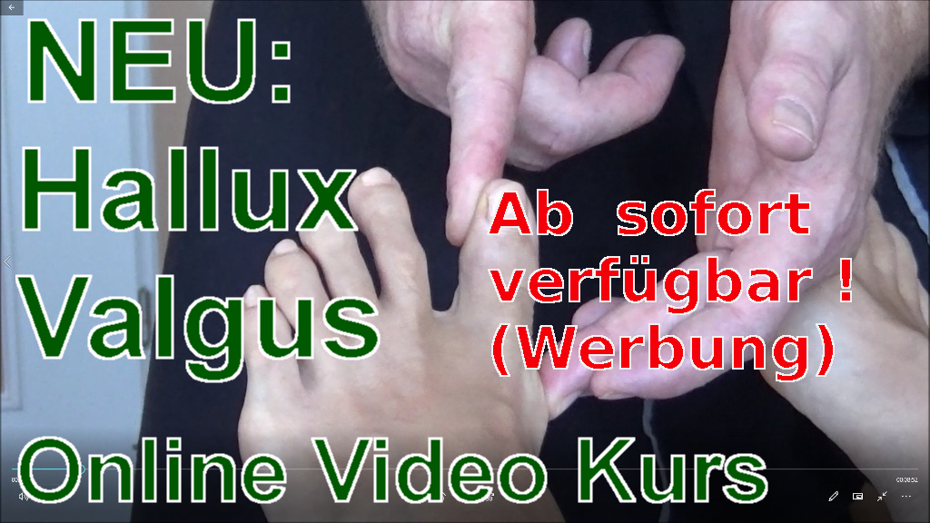Hallux Valgus Online Video Kurs